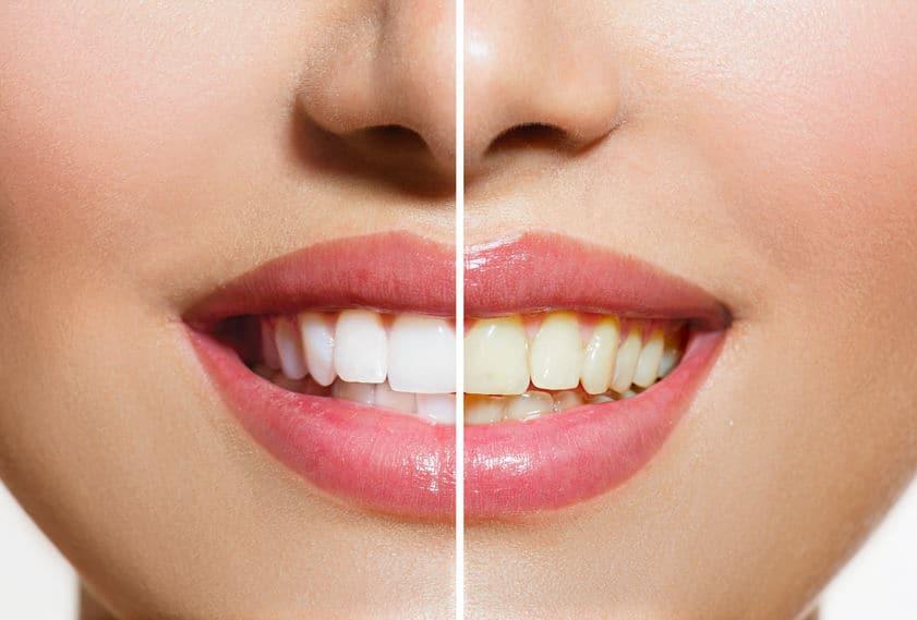 Imagem mostra efeito do clareador dental comparando dentes brancos e amarelados.
