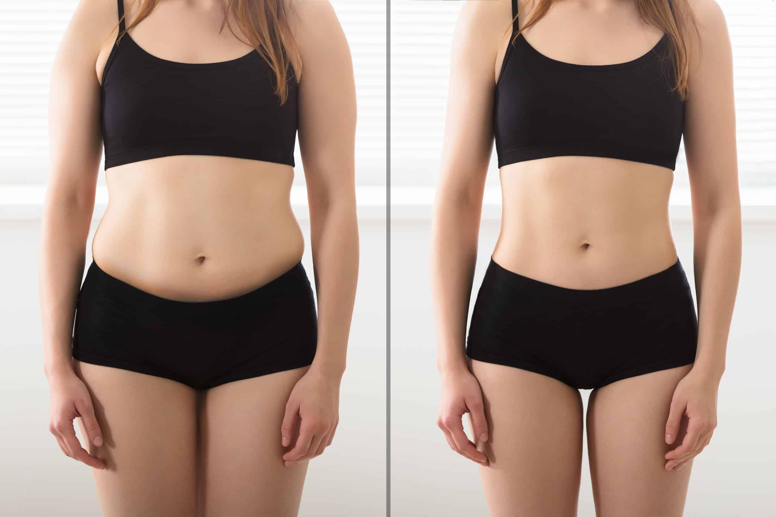 Imagem do antes e depois de uma mulher que emagreceu.