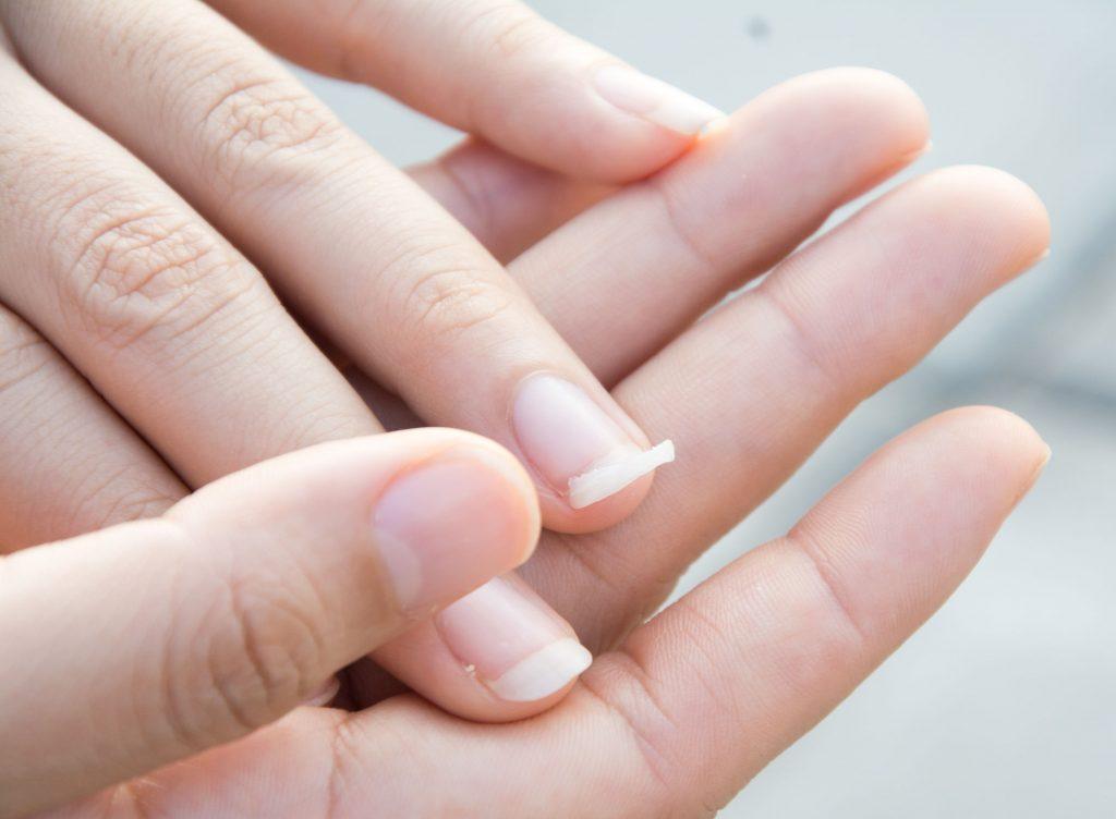 Na foto as mãos de uma mulher com uma unha quebrada.