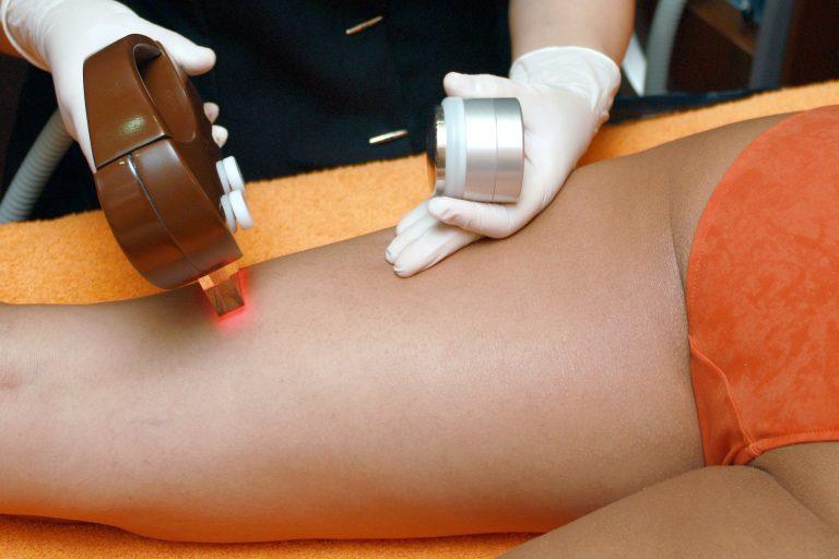 Profissional usando depilador a laser em mulher.