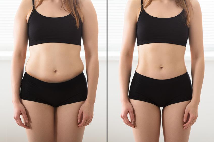 Imagem do antes e depois de uma mulher.